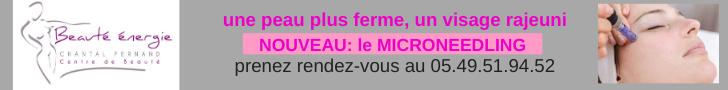 esthétique microneedling à Poitiers